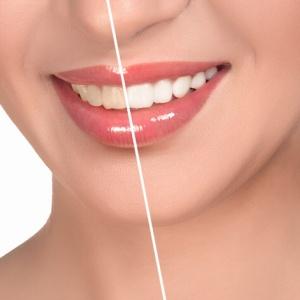 beconfiDent: bělejší zuby za 2 dny