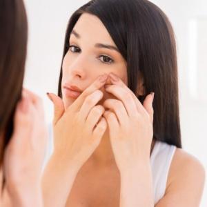 5 věcí, které způsobují akné