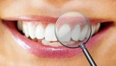 Soda odstraňuje skvrny na zubech