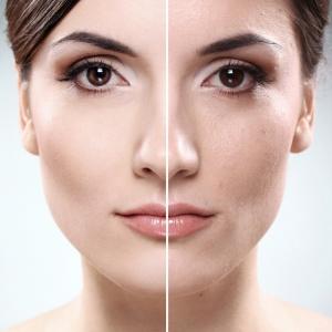 Jak jsem odstranila několik let z mého obličeje