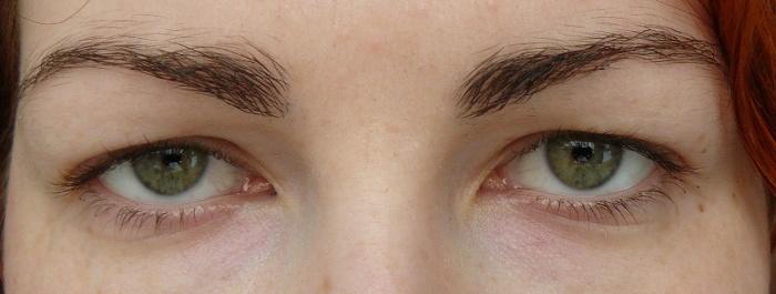Spadlé oční víčko líčení