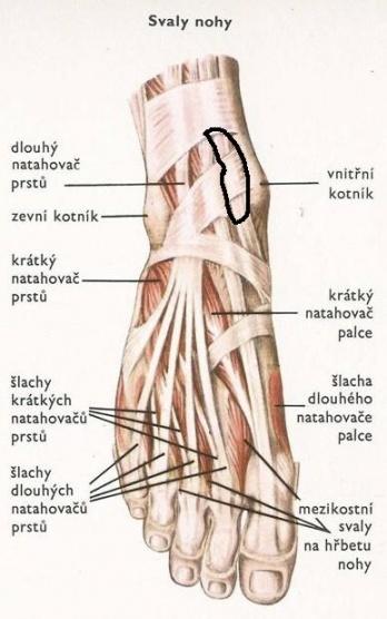 Charcotova artropatie —