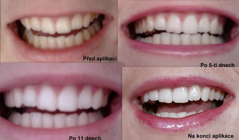 kurkuma na zuby recenze