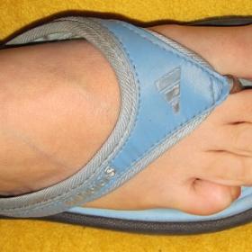 Modré žabky Adidas - foto č. 1