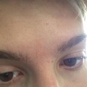 Neustupující hnědo - červená jizva na obličeji