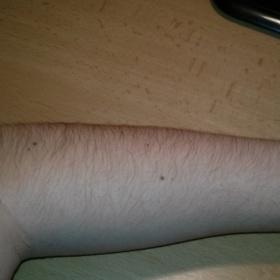 Velmi chlupaté ruce - oholit?