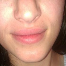 Silně natékající nos rok po reoperaci+ foto