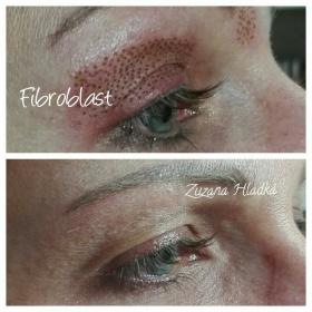 Fibroblast - neinvazivní lifting očních víček, vrásek atd.