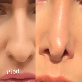 Zpackaná plastika nosu? Foto