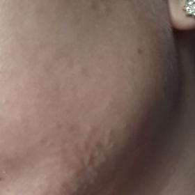 Krupička na obličeji (na tváři a bradě)