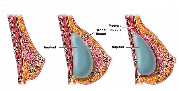 увеличение груди порно